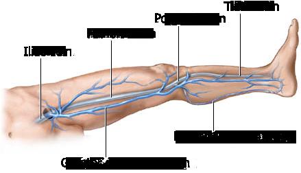 Come guarire il perossido di idrogeno varicosity
